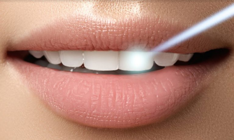Bowmanville Smiles Dental Centre - Bowmanville